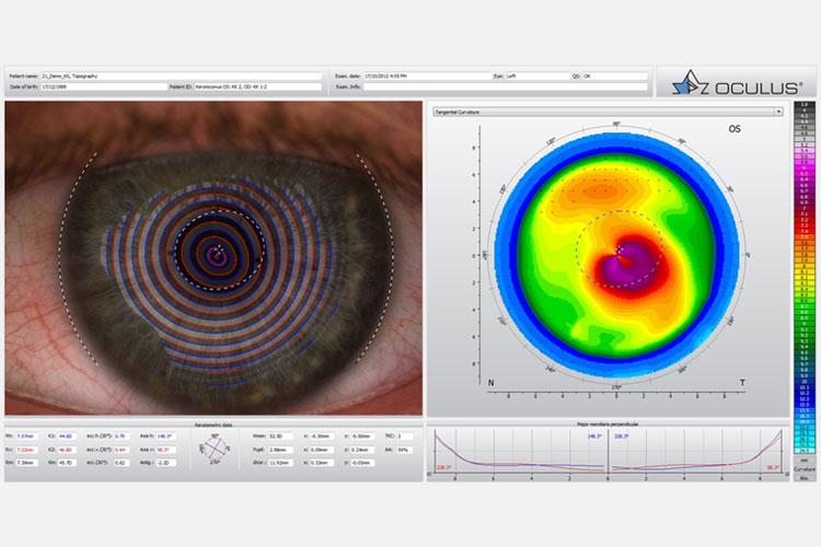 Someone currently having eye testing done near Sunshine, Vic